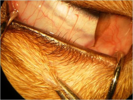 Наглядное изображение дистихиаза