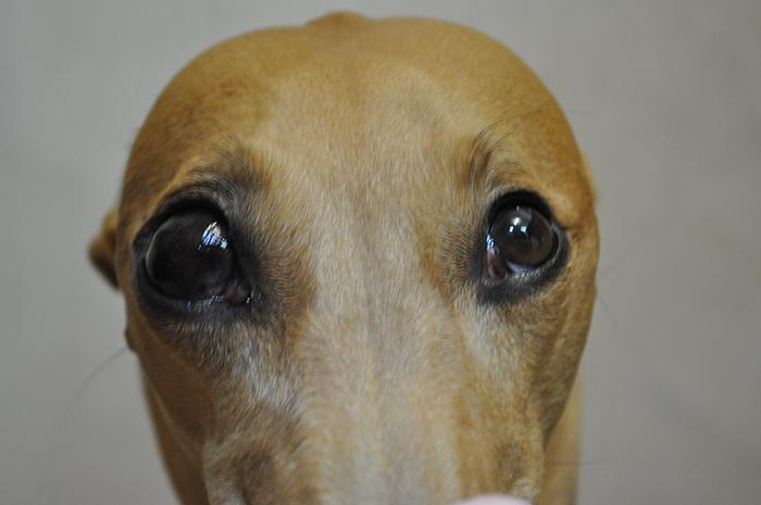 Экзофтальм - выпячивание глазного яблока из глазницы