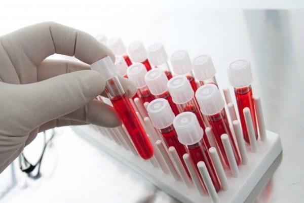Общий анализ крови, соответственно названию, показывает общее здоровье животного