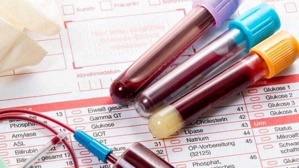 Биохимия показывает скрытые патологии в организме, в том числе, хронического течения