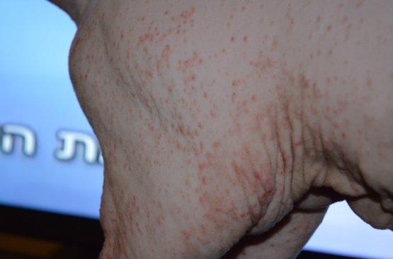 Аллергия у Донского сфинкса