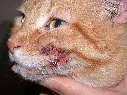 Атопический дерматит - это хроническая аллергическая реакция кожи на раздражители