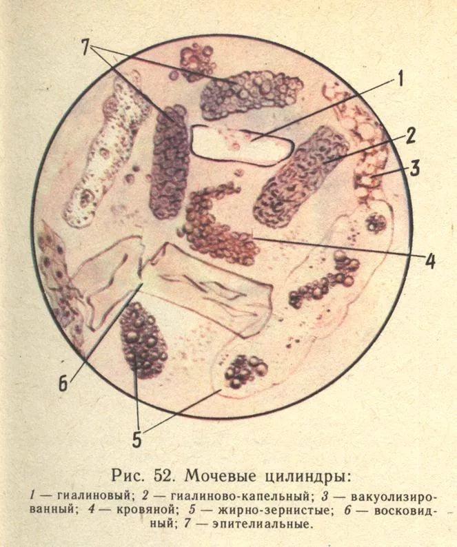 Виды цилиндров в урине