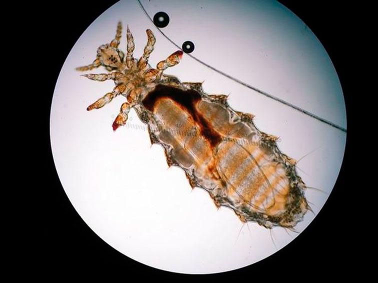 Власоед под микроскопом