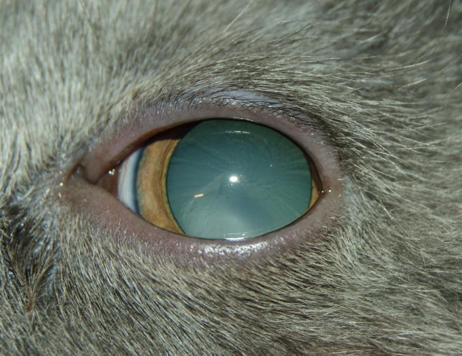 Для лечения катаракты используется медикаментозный и хирургический метод лечения