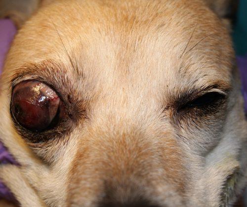 Запущенная глаукома