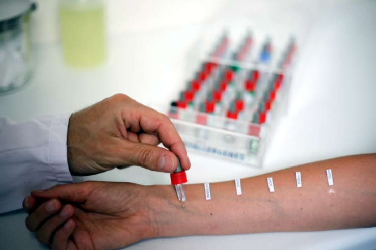 Самый распространенный тест на аллергию - кожный, но кому-то он может быть противопоказан