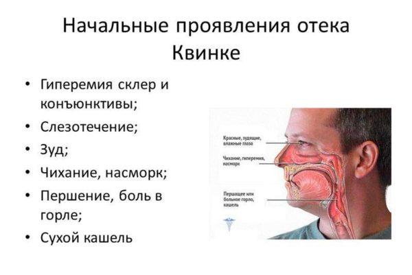 Первичные симптомы отека Квинке
