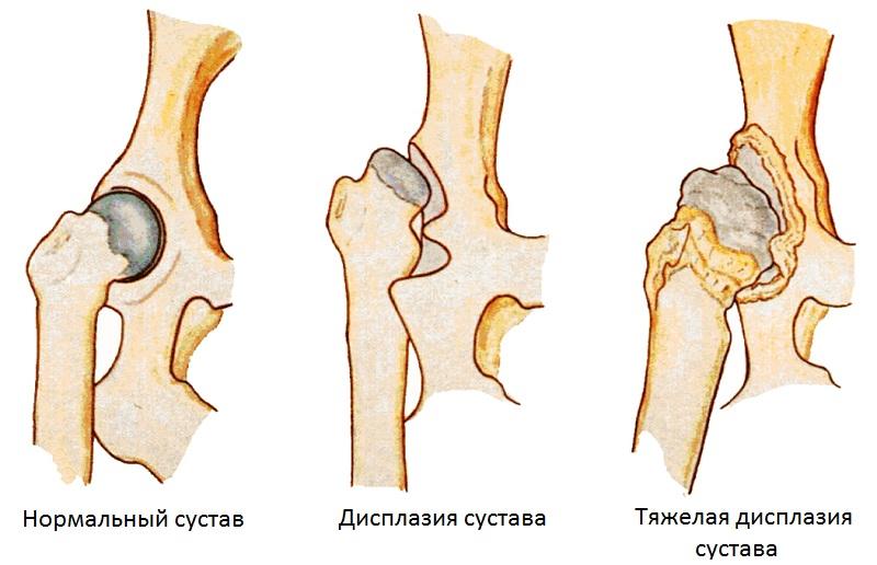 Процесс разрушения суставов при заболевании