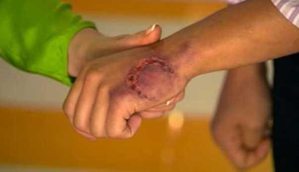 Рану после укуса собаки необходимо обработать