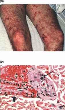Поражения организма, связанные с попаданием в кровь Сapnocytophaga canimorsus