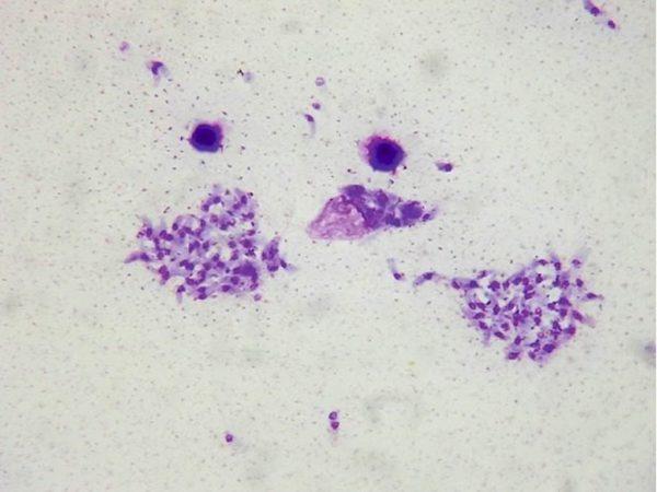 Токсоплазма гонди под микроскопом
