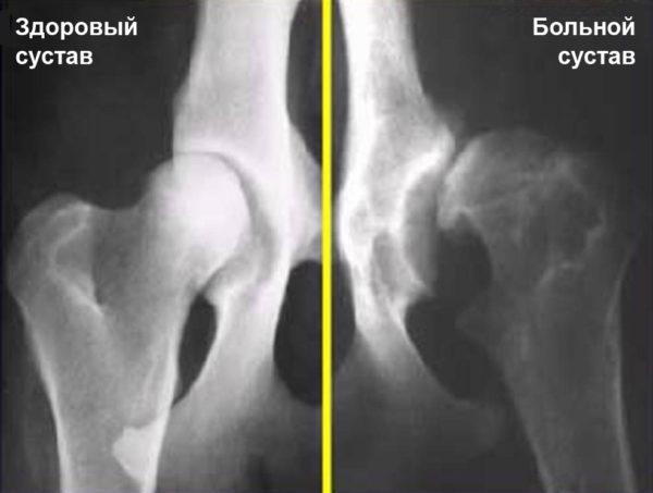Дисплазия тазобедренного сустава: снимок здорового и больного фрагмента