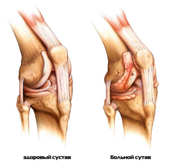 Лучезапястный сустав: снимок здорового и больного фрагмента