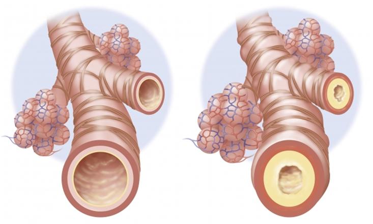 Вид здоровых бронхов (вид слева) и воспаленных (вид справа)