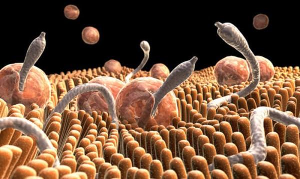 Изучение фрагмента фекалий под микроскопом позволяет классифицировать вид паразита