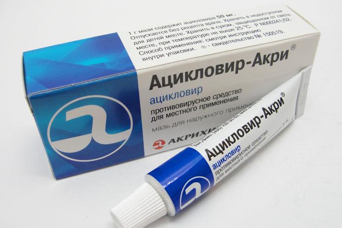 Мазь Ацикловир позволит снять воспаление с пораженного участка