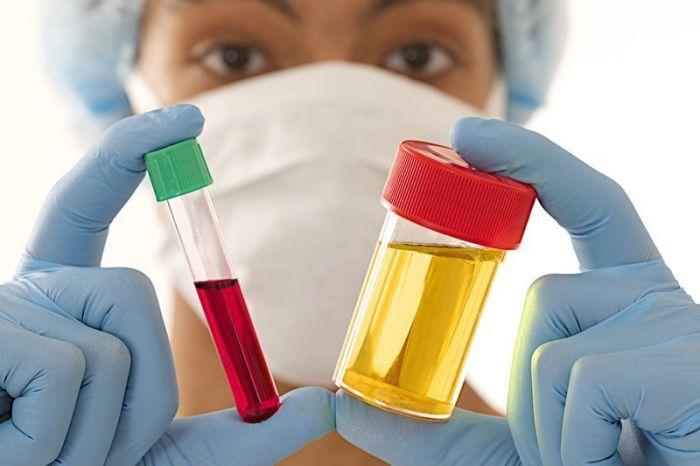 Образцы крови и мочи для анализа