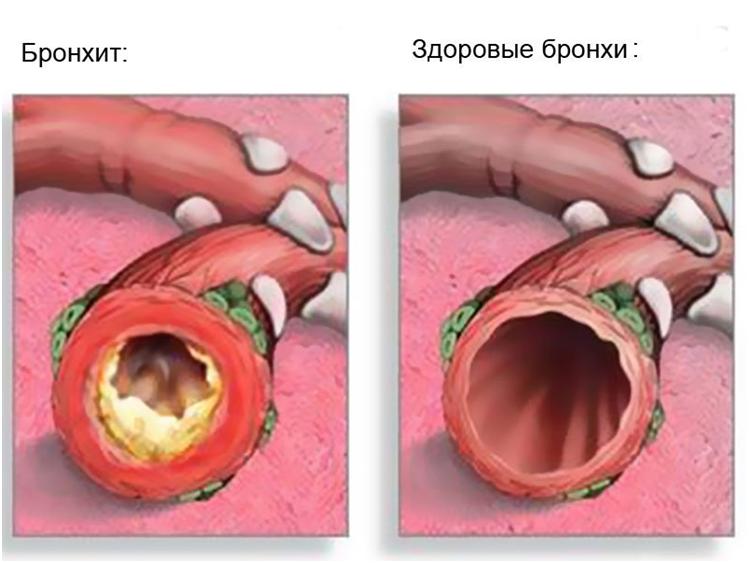 Отличительное состояниездоровых бронхов (вид справа) от воспаленных при бронхите (вид слева)