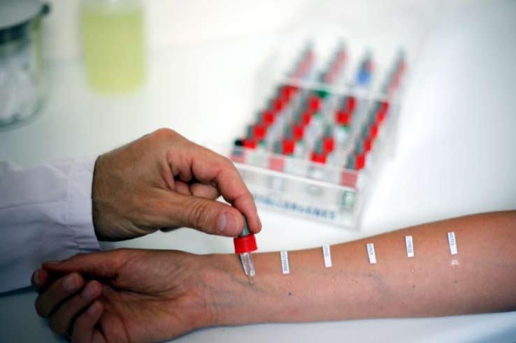 Прояснить ситуацию поможет тест на аллергены