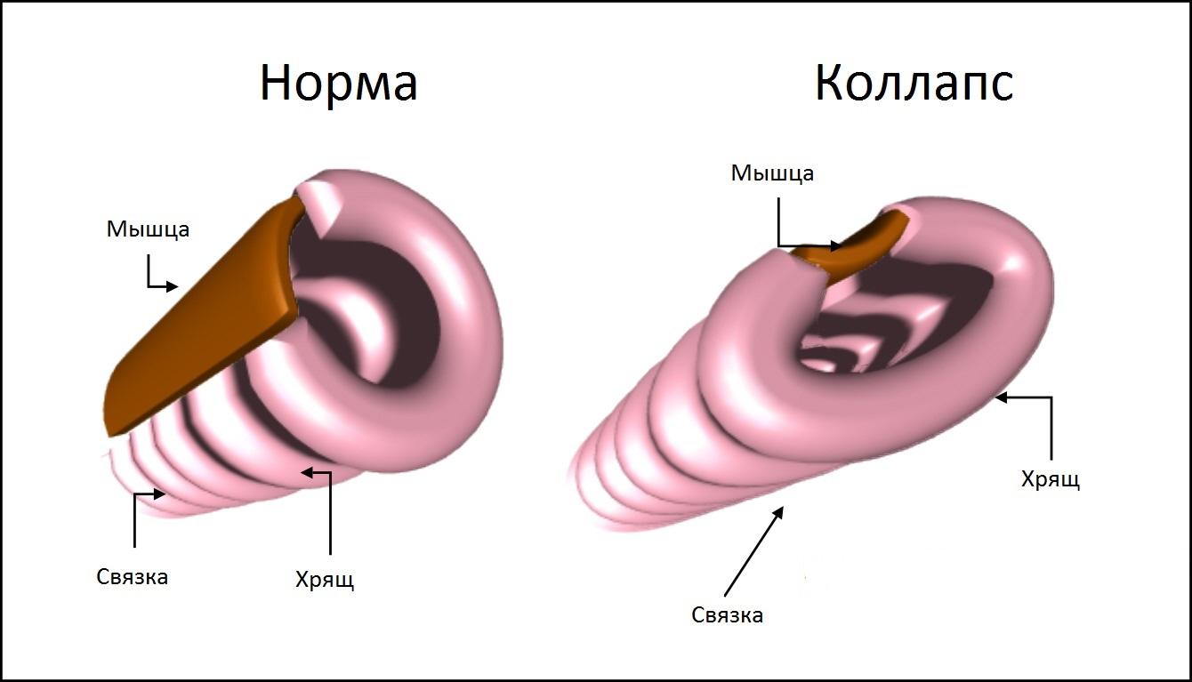 Схематическое изображение коллапса трахеи