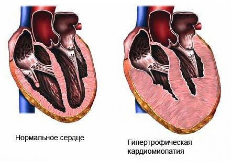 Схема гипертрофической кардиомиопатии у кошки