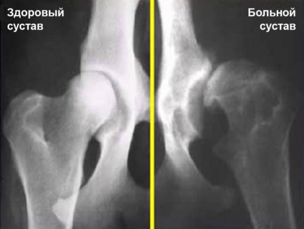 Дисплазия на рентгене