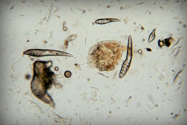 Яйца, личинки и клещи в объективе микроскопа
