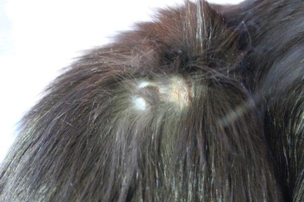 Характерная особенность зудневой чесотки — образование струпьев на коже
