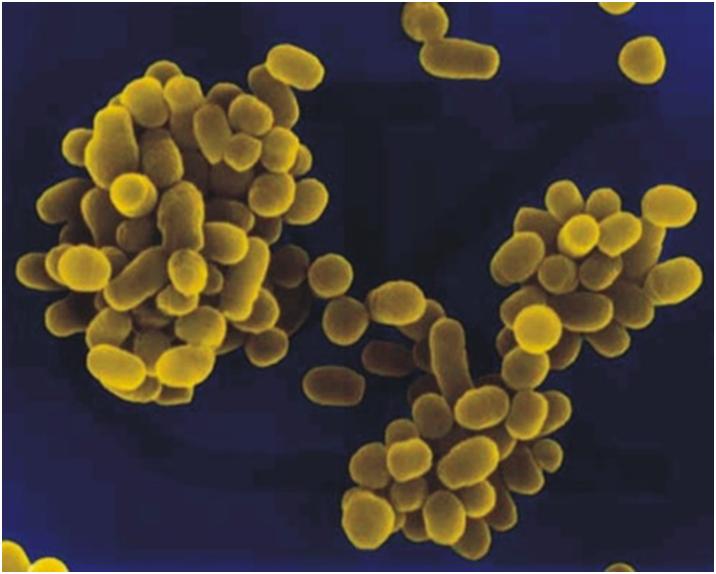 Бруцеллез – это заболевание, вызванное бактерией Бруцелла