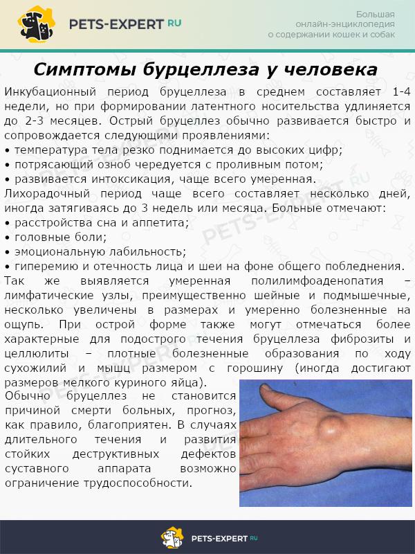 Симптомы бурцеллеза у человека