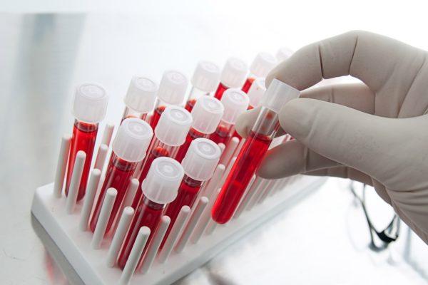 Анализ крови не показывает наличие инфекционного перитонита в организме