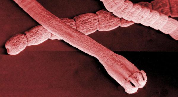 Паразитирование гельминтов — одна из причин возникновения заболевания
