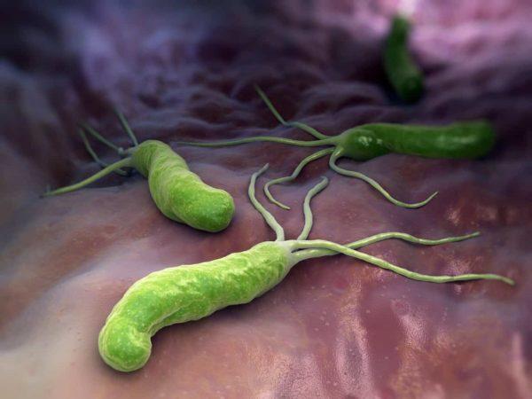 Деятельность Helicobacter pylori приводит к появлению гастрита
