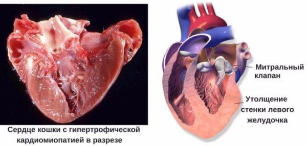 Изображение пораженного патологией сердц