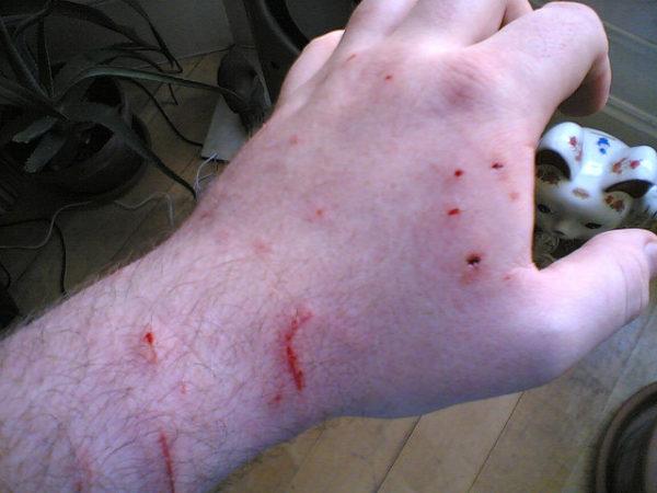 Нужно беречь руки от укусов кошки, поскольку они долго заживают