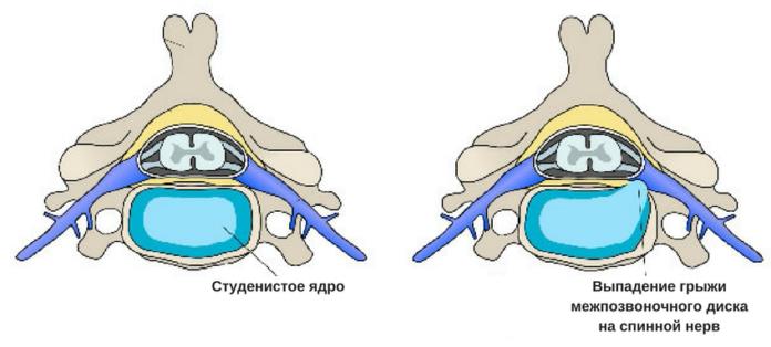 Сдавление содержимого спинномозгового канала