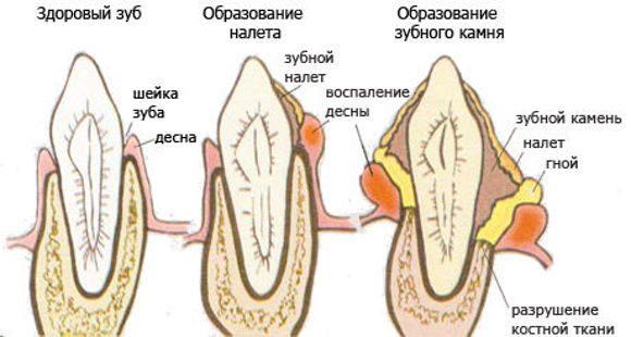 Стадии образования зубного камня у собак и кошек